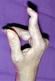 Le doigt de JP